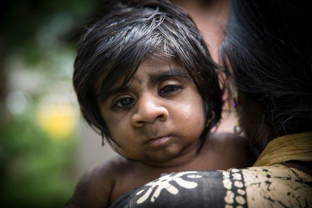 """Mẹ đau khổ khi sinh con trai """"ma sói"""" tỉ lệ gen hiếm 1/1 tỉ - 4"""
