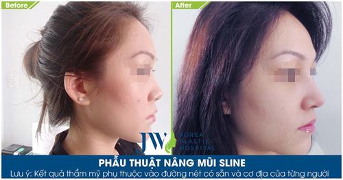 Khám phá loạt ảnh khách hàng nâng mũi S-line cực xinh tại JW - 10