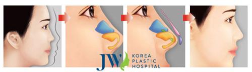 Khám phá loạt ảnh khách hàng nâng mũi S-line cực xinh tại JW - 2
