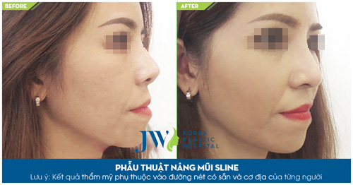 Khám phá loạt ảnh khách hàng nâng mũi S-line cực xinh tại JW - 6