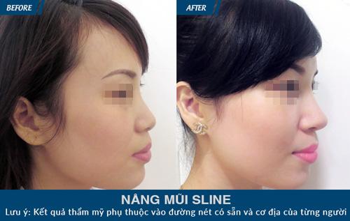 Khám phá loạt ảnh khách hàng nâng mũi S-line cực xinh tại JW - 7