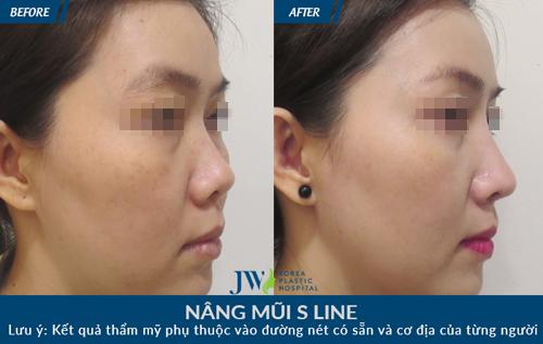 Khám phá loạt ảnh khách hàng nâng mũi S-line cực xinh tại JW - 9