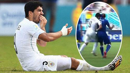Rugby: Cấm thi đấu 1 năm vì 2 lần cắn đối thủ như Suarez - 1