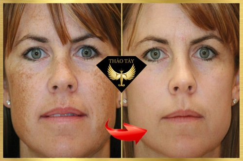Baby Face cung cấp dưỡng chất giúp da căng mọng, trắng sáng - 8