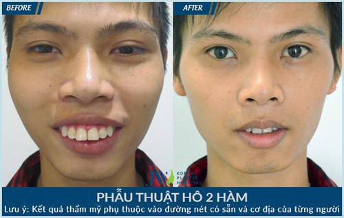 Gương mặt baby sau phẫu thuật của chàng trai siêu hô - 2