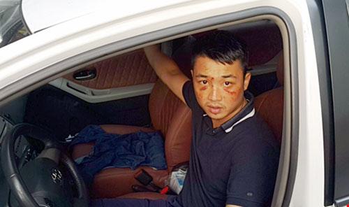 6 kẻ nổ súng trước quán karaoke ở Nghệ An ra đầu thú - 1