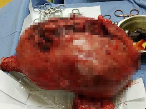 Mổ lấy thai 3,2 kg cùng khối u nặng gần 6 kg - 2