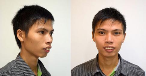 Gương mặt baby sau phẫu thuật của chàng trai siêu hô - 1