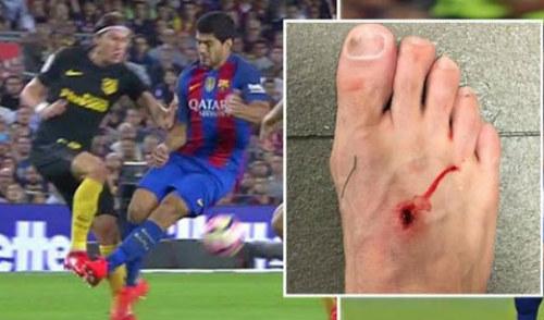 """Simeone buộc MSN """"tắt điện"""": Chìa khóa cầm chân Barca - 3"""