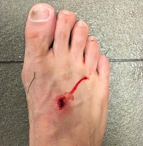 Đạp chảy máu chân đối thủ, Suarez quyết không xin lỗi - 2