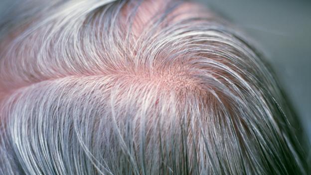 Giải mã hiện tượng tóc bạc trắng sau một đêm - 4