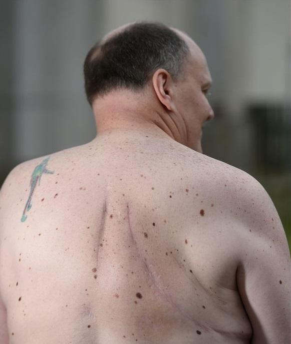 """Gỡ bỏ khối u """"ngoài hành tinh"""" khỏi lưng người đàn ông - 3"""