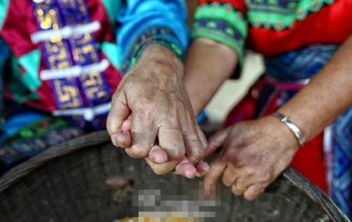 Cảm phục cụ ông giúp vợ ung thư vui vẻ lúc cuối đời - 5