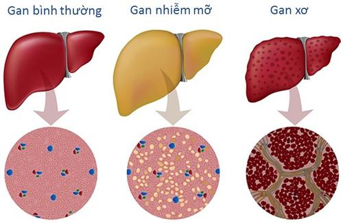 Những điều cần cẩn thận khi dùng thuốc để tránh gan nhiễm mỡ - 2