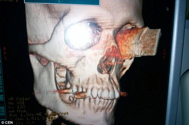 Bị dao đâm xuyên qua mắt vào não, vẫn sống và nhìn được - 1