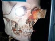 Bị dao đâm xuyên qua mắt vào não, vẫn sống và nhìn được