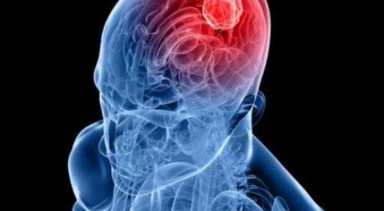 Những phương pháp mới nhất điều trị u não ác tính - 1