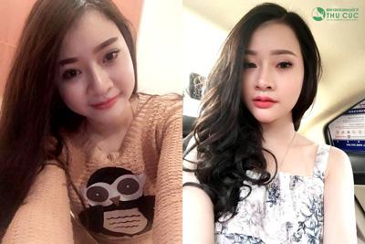Qua thời môi mỏng, hotgirl đổi mốt với môi trái tim chuẩn Hàn - 1