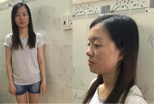 Cô gái 9X hết trầm cảm và đổi đời sau ca đại phẫu - 2
