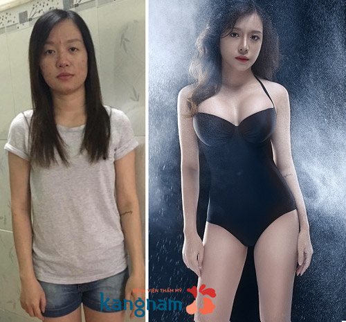 Cô gái 9X hết trầm cảm và đổi đời sau ca đại phẫu - 3
