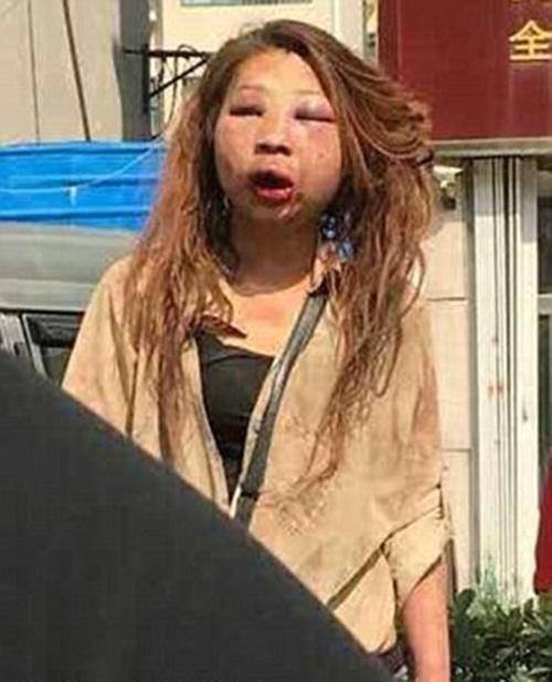 Kinh hoàng cô gái biến dạng mặt mày vì bị đánh ghen - 1