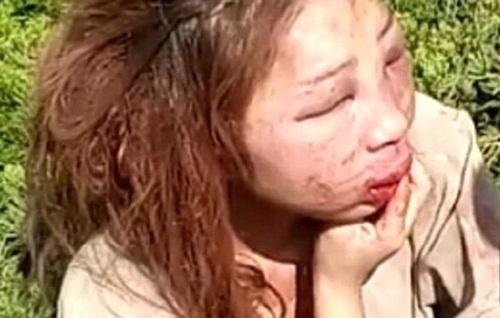 Kinh hoàng cô gái biến dạng mặt mày vì bị đánh ghen - 2