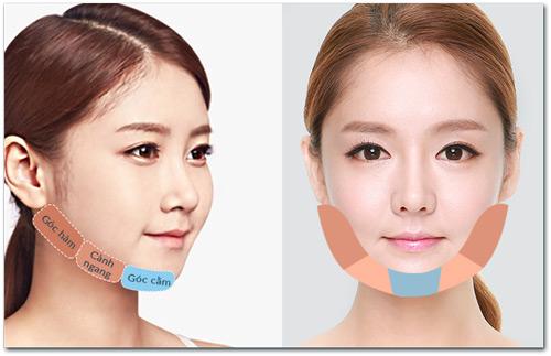 Gọt mặt V-line thế hệ mới – Tác động toàn diện cho khuôn mặt thon gọn - 2