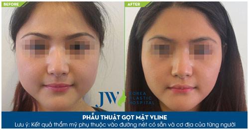 Gọt mặt V-line thế hệ mới – Tác động toàn diện cho khuôn mặt thon gọn - 4