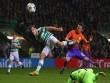 Celtic - Man City: Rượt đuổi 6 bàn tại Glasgow