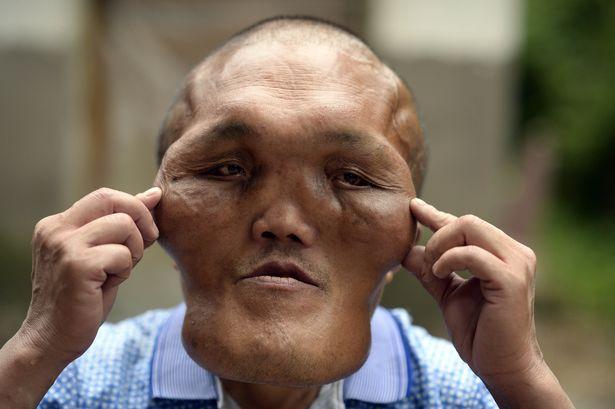 """Bị nhầm là """"người ngoài hành tinh"""" vì khuôn mặt kỳ dị - 4"""