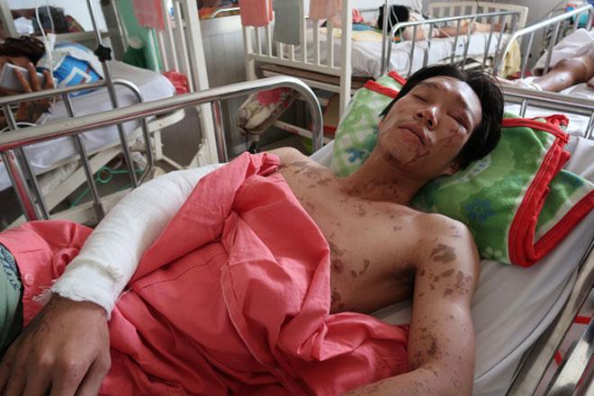 Lời kể kinh hoàng của 4 nạn nhân bị tạt a xít - 5