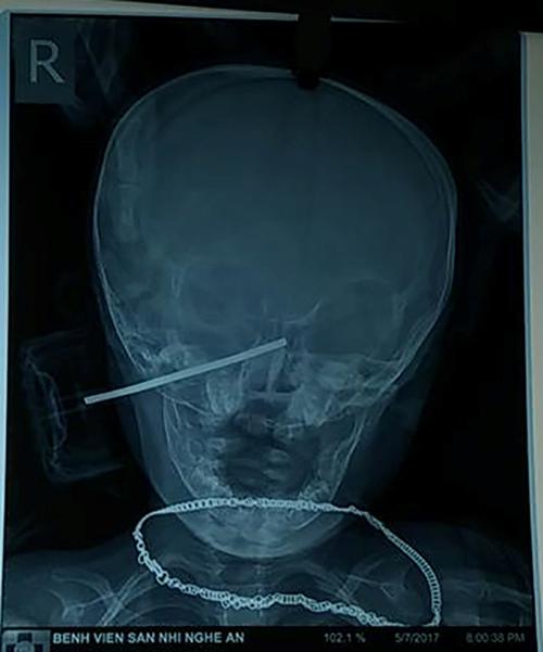 Bé 11 tháng tuổi bị trục bánh xe đồ chơi đâm thẳng vào đầu - 2