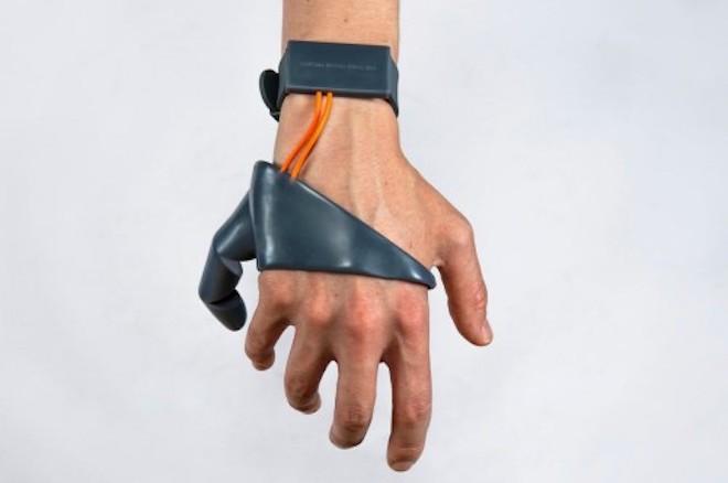 Công nghệ cho phép gắn thêm ngón tay nhân tạo để bàn tay có 6 ngón - 1