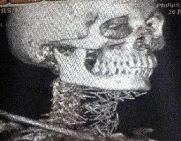 """150 cây kim """"làm tổ"""" trong cơ thể người đàn ông khốn khổ - 3"""