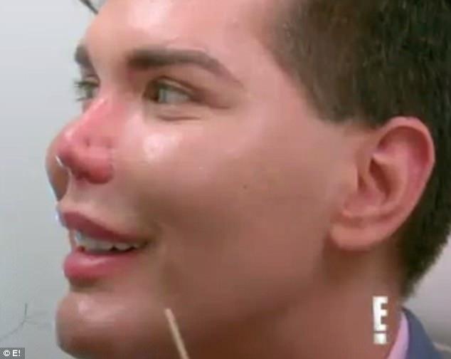 Búp bê sống suýt mất mũi vì ham hố phẫu thuật thẩm mỹ - 3