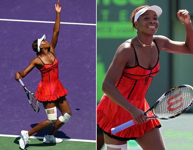 Tròn mắt ngắm váy tennis ngắn cũn cỡn như váy ngủ, nội y - 2