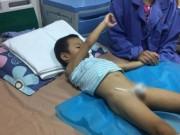 Hàng loạt trẻ đột nhiên mắc sùi mào gà: Con kêu khóc vì đau đớn