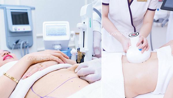 Trầm cảm vì béo sau sinh, hóa hotmom nhờ giảm 12kg sau 2 tháng - 2
