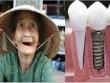 Câu chuyện hàm răng rẻ tiền và bài học đáng suy ngẫm