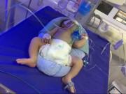 Sức khỏe đời sống - Để trẻ sơ sinh trong phòng kín tối, khó phát hiện căn bệnh nguy hiểm tính mạng
