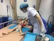 Thêm 11 trẻ bị sùi mào gà nhập viện sau cắt bao quy đầu