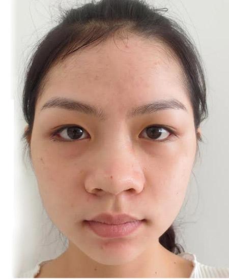 Cô gái nâng mũi trở thành hotgirl gây xôn xao - 2