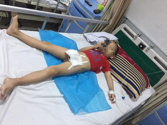 Đã có 74 trẻ bị sùi mào gà sau cắt bao quy đầu ở Hưng Yên - 1