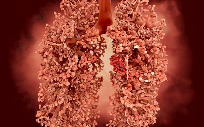 Kẻ thù số 1 gây ra căn bệnh ung thư nguy hiểm hàng đầu - 1