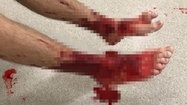 Loài sinh vật đục lỗ trên da người khiến máu chảy dữ dội không ngừng - 3