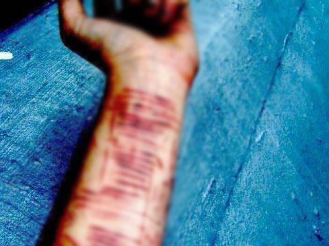 Mắc chứng bệnh lạ, nữ sinh cắt 16 vết trên cánh tay không thấy đau