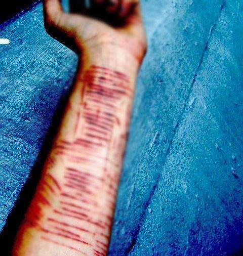 Mắc chứng bệnh lạ, nữ sinh cắt 16 vết trên cánh tay không thấy đau - 1