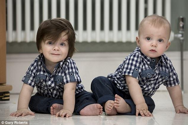Anh: Cặp sinh đôi giống nhau mọi thứ trừ bộ tóc - 1