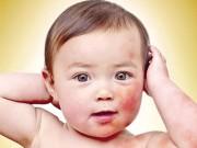 Sức khỏe đời sống - 10 bệnh trẻ hay gặp lúc giao mùa và cách phòng tránh