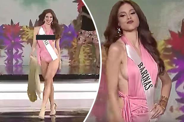 Chân dài đẹp như tiên mất vương miện vì sự cố lộ vòng 1 khi thi hoa hậu - 1